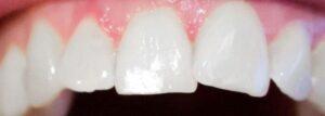 Weiße Flecken auf den Zähnen schädlich?