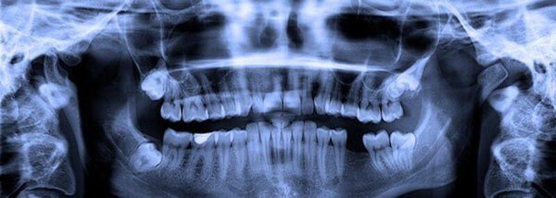 Röntgenaufnahme der Zähne