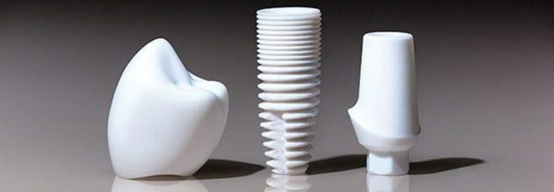 Implantate können Parodontose begünstigen