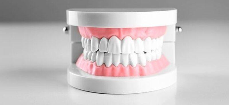 Zahnfleisch wieder aufbauen
