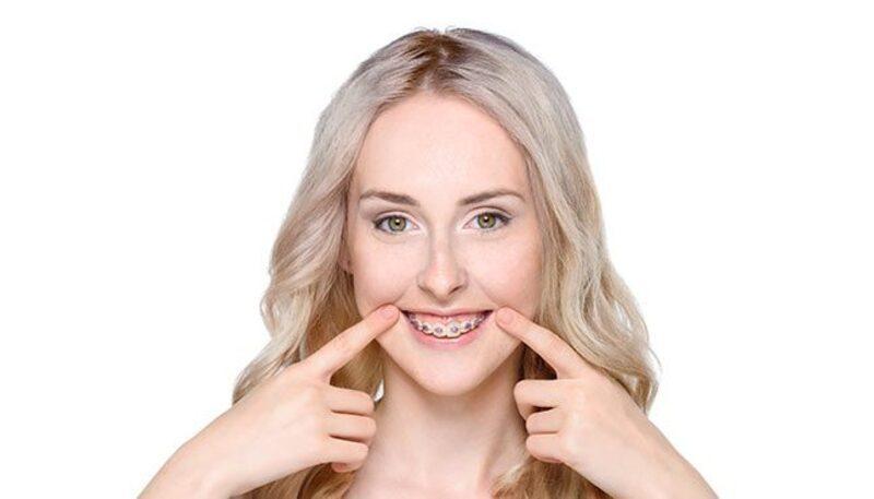 elektrische zahnbürste zahnspange